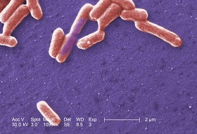 E.coli under an electron microscope recombinant-DNA