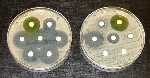 Resistentie tegen antibiotica